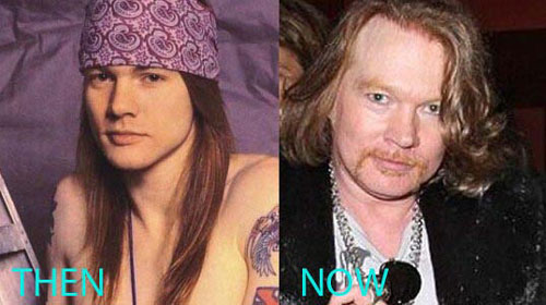 Axl Rose Plastic Surgery Before and After