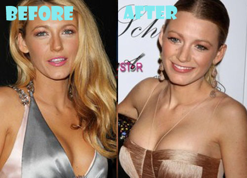 Blake Lively Plastic Surgery Breast Implant