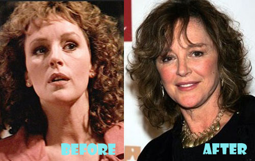 Bonnie Bedelia Plastic Surgery Botox Facelift