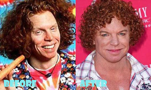 Carrot Top Plastic Surgery Gone Wrong
