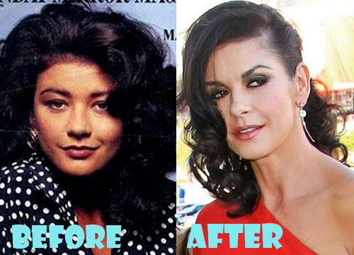 Catherine Zeta Jones Plastic Surgery Nose Job