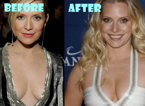 Emily Procter Plastic Surgery Breast Implant