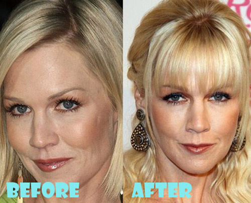 Jennie Garth Plastic Surgery Botox