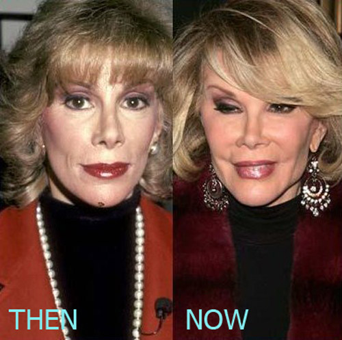 Joan Rivers Plastic Surgery