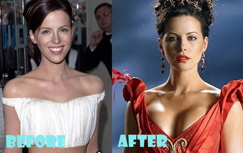 Kate Beckinsale Plastic Surgery Breast Implant