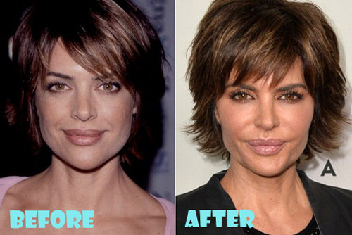 Lisa Rinna Plastic Surgery Before and After - Lovely