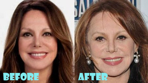 Marlo Thomas Plastic Surgery Botox, Facelift