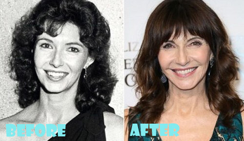 Mary Steenburgen Plastic Surgery