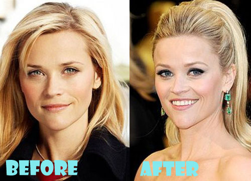 Reese Witherspoon Plastic Surgery Botox