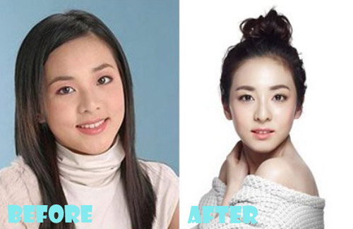 Sandara Park Plastic Surgery Before and After - Lovely ...