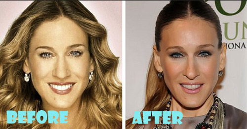 Sarah Jessica Parker Plastic Surgery before after