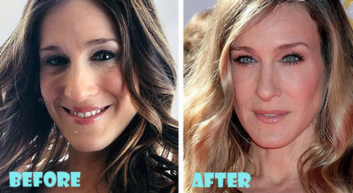 Sarah Jessica Parker Plastic Surgery Before And After Nose