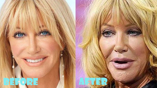 Suzanne Somers Plastic Surgery Lip Implant