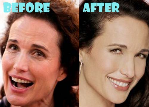 Andie MacDowell Plastic Surgery Nose Job