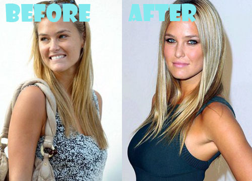 Bar Refaeli Plastic Surgery Boob Job