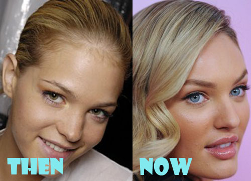 Candice Swanepoel Before And After Plastic Surgery Candice swanepoel plastic