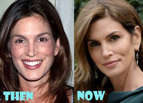 Cindy Crawford Plastic Surgery Dermal Filler, Botox