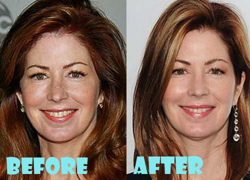 Dana Delany Plastic Surgery Before And After Pictures