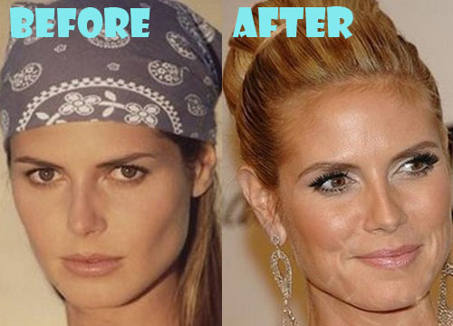 Heidi Montag After Plastic Surgery