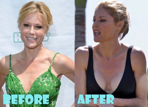 Julie Bowen Plastic Surgery Breast Implant