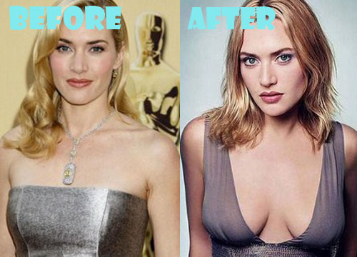Kate Winslet Plastic Surgery Breast Implant