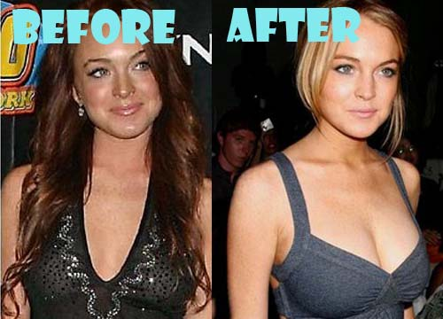 Lindsay Lohan Plastic Surgery Breast Implant