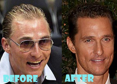 A Good Hair Transplant Surgeon Can Do Wonders For Ones Appearance Check Out Matthew McConaugheys Before After Pic If You Look At Lot Of Male