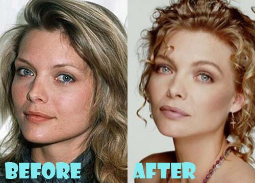 Michelle Pfeiffer Plastic Surgery Before and After Nose ... K Michelle Before And After Body