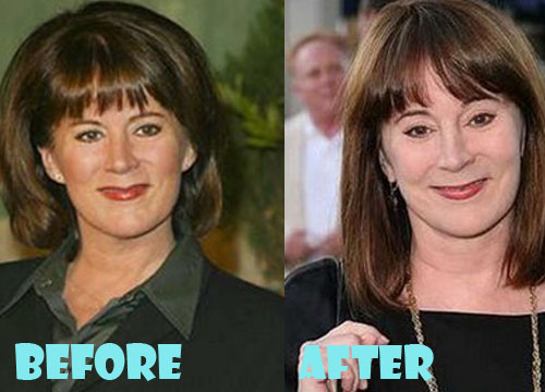 Patricia Richardson Plastic Surgery Botox, Dermal Filler