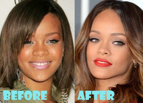 Rihanna Plastic Surgery Nose Job Before and AfterRihanna Before And After Nose Job