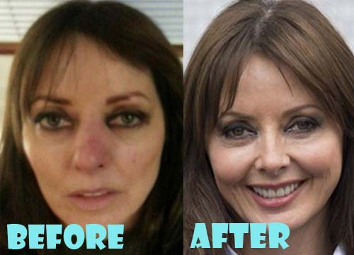 Carol Vorderman Plastic Surgery Nose Job
