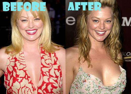 Charlotte Ross Plastic Surgery Breast Implant