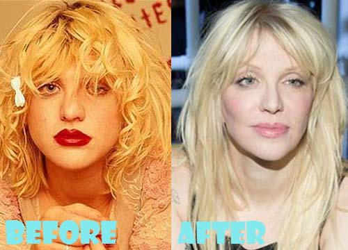Courtney Love Plastic Surgery Chin Implant