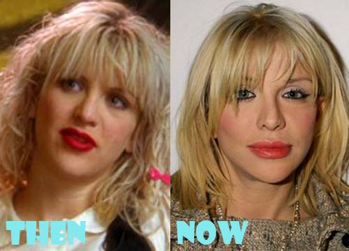Courtney Love Plastic Surgery Facelift