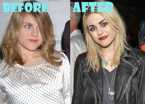 Frances Bean Cobain Plastic Surgery Before And After Photos