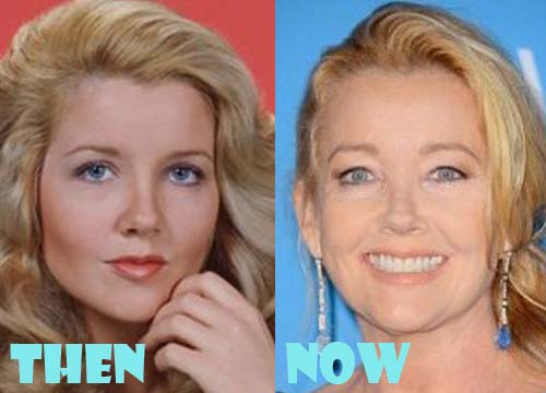 Melody Thomas Scott Plastic Surgery Facelift
