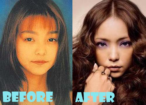 Namie Amuro Plastic Surgery Before And After Nose Job