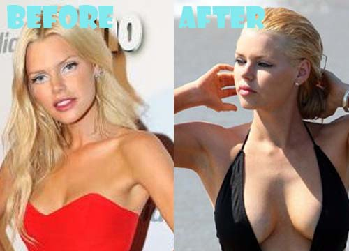 Sophie Monk Plastic Surgery Breast Implant