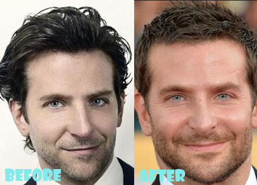 Bradley Cooper Plastic Surgery Nose Job
