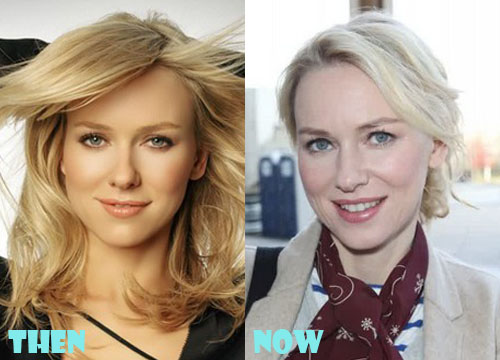 Naomi Watts Plastic Surgery