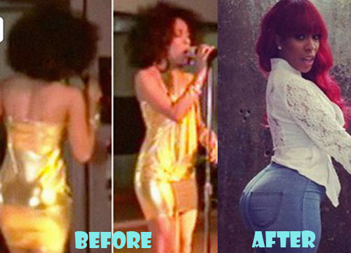 K Michelle Plastic Surgery But Implants