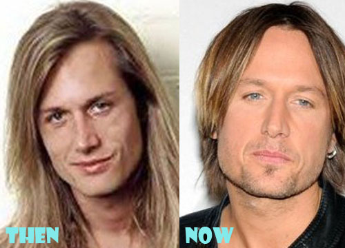 Keith Urban Plastic Surgery Botox, Facelift