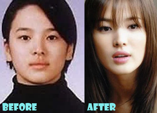 Song Hye Kyo Plastic Surgery Eyelid Surgery