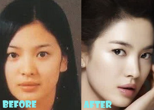Song Hye Kyo Plastic Surgery Nose Job