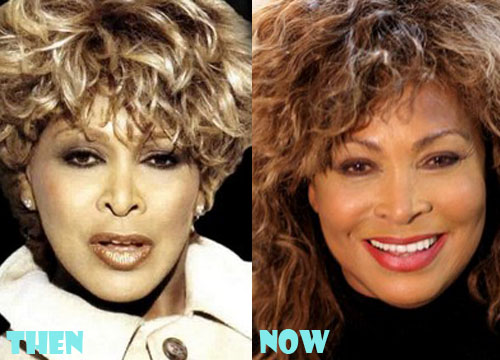 Tina Turner Plastic Surgery