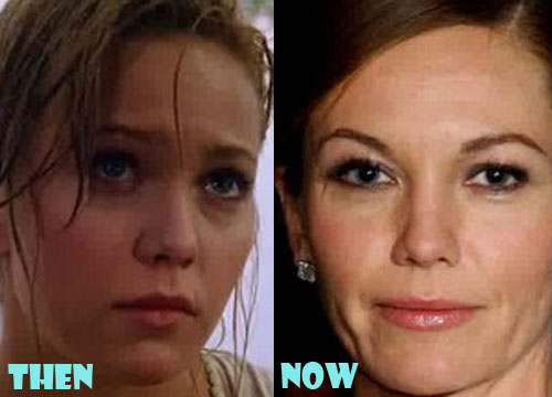 Diane Lane Plastic Surgery Botox, Facelift