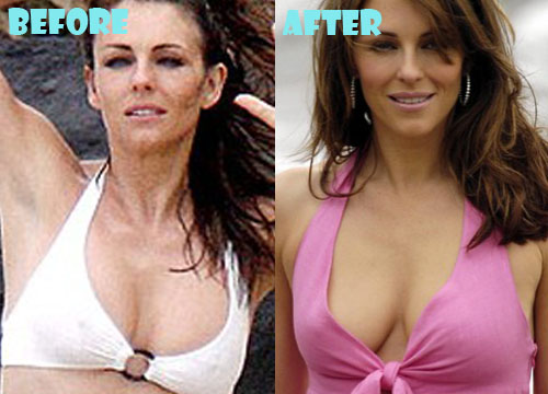 Elizabeth Hurley Plastic Surgery Breast Implant