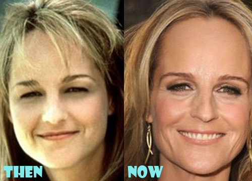 Helen Hunt Plastic Surgery Before And After Photo Lovely