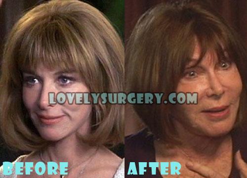 Lee Grant Plastic Surgery Gone Wrong