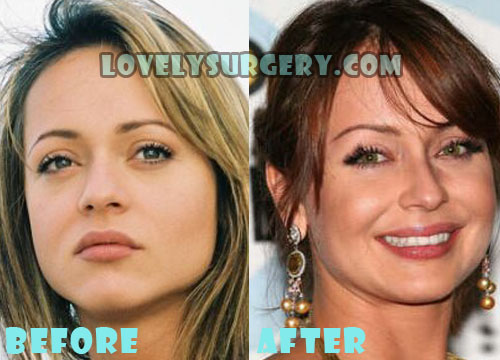 Gabriela Spanic Plastic Surgery Nose Job
